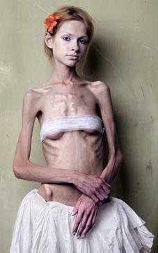 anorexia-nervosa1.JPG