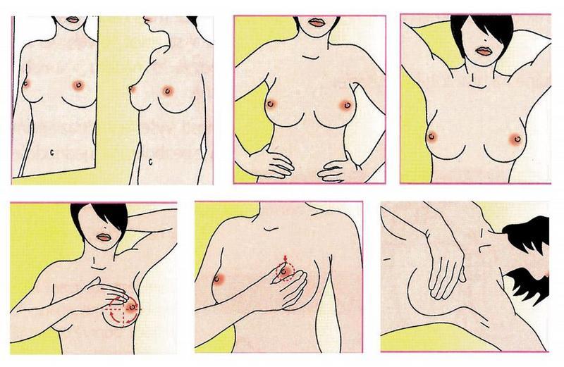 nezanevri-na-samovysetreni-prsu (2)